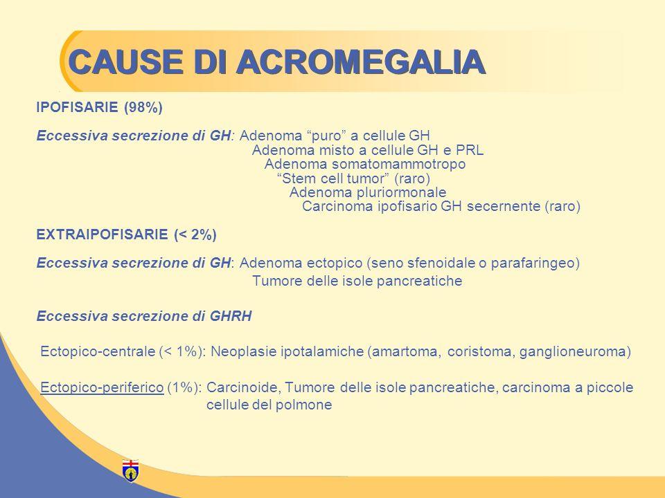 CAUSE DI ACROMEGALIA IPOFISARIE (98%) Eccessiva secrezione di GH: Adenoma puro a cellule GH Adenoma misto a cellule GH e PRL Adenoma somatomammotropo