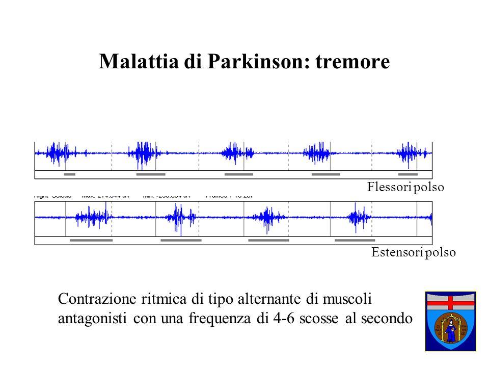 Malattia di Parkinson: tremore Contrazione ritmica di tipo alternante di muscoli antagonisti con una frequenza di 4-6 scosse al secondo Flessori polso