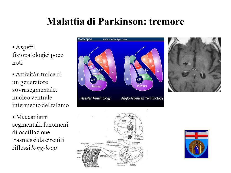 Malattia di Parkinson: tremore A riposo e quindi poco invalidante Risponde bene alla terapia (sia medica sia DBS) Non rappresenta il target dellintervento riabilitativo