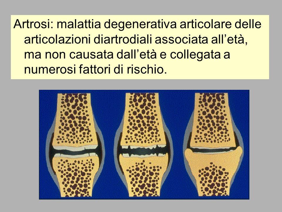 Artrosi: malattia degenerativa articolare delle articolazioni diartrodiali associata alletà, ma non causata dalletà e collegata a numerosi fattori di