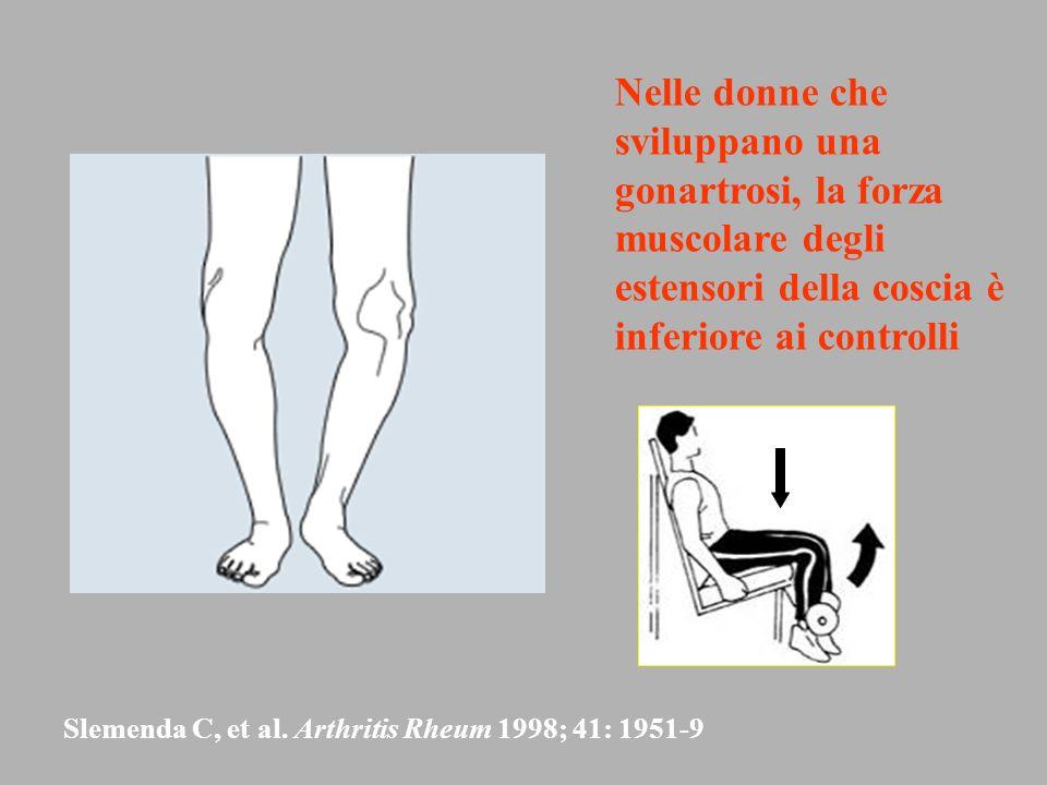 Nelle donne che sviluppano una gonartrosi, la forza muscolare degli estensori della coscia è inferiore ai controlli Slemenda C, et al. Arthritis Rheum