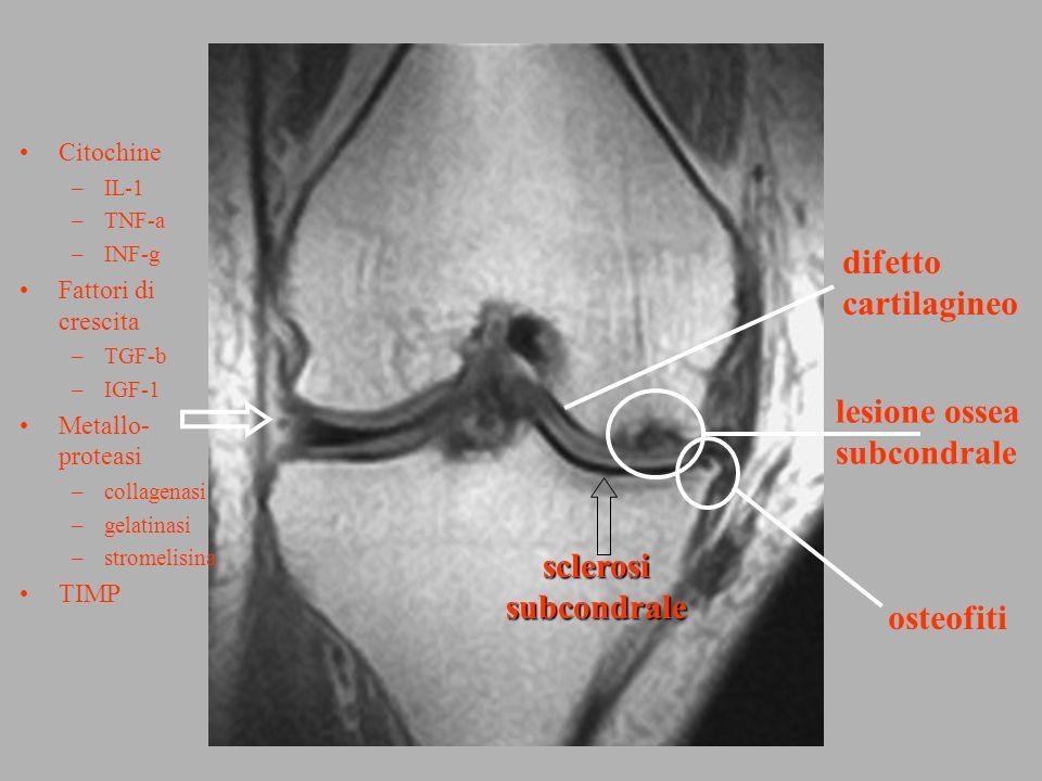 osteofiti difetto cartilagineo sclerosisubcondrale Citochine –IL-1 –TNF-a –INF-g Fattori di crescita –TGF-b –IGF-1 Metallo- proteasi –collagenasi –gel