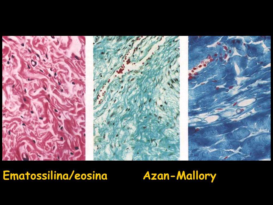 Ematossilina/eosina Azan-Mallory