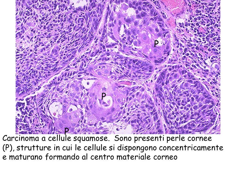 Carcinoma a cellule squamose. Sono presenti perle cornee (P), strutture in cui le cellule si dispongono concentricamente e maturano formando al centro