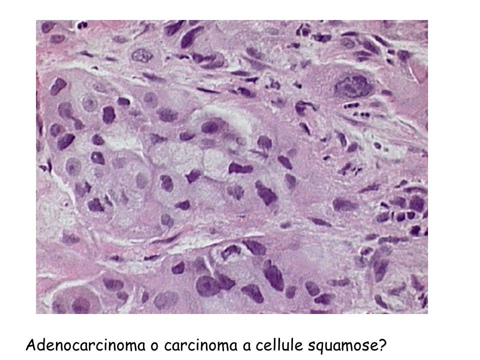 Adenocarcinoma o carcinoma a cellule squamose?