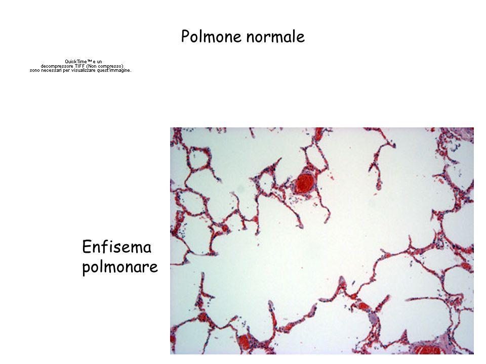 Sintomatologia dellenfisema Dispnea, tachipnea, cianosi Ipertensione polmonare –Vasocostrizione indotta dallipossia –Diminuzione del letto vascolare Scompenso cardiaco destro = Cuore polmonare cronico