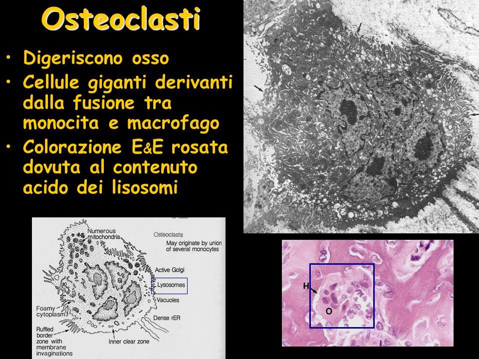 Osteoclasti Digeriscono osso Cellule giganti derivanti dalla fusione tra monocita e macrofago Colorazione E & E rosata dovuta al contenuto acido dei l