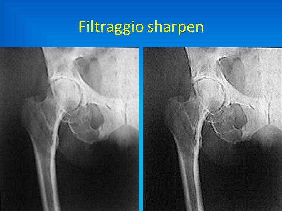 Slide 55 Filtraggio sharpen