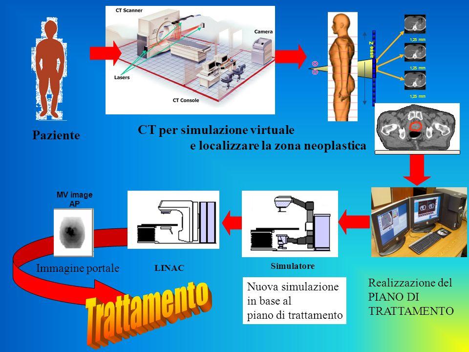 Realizzazione del PIANO DI TRATTAMENTO Paziente CT per simulazione virtuale e localizzare la zona neoplastica 1,25 mm asse Z LINAC Simulatore Nuova si