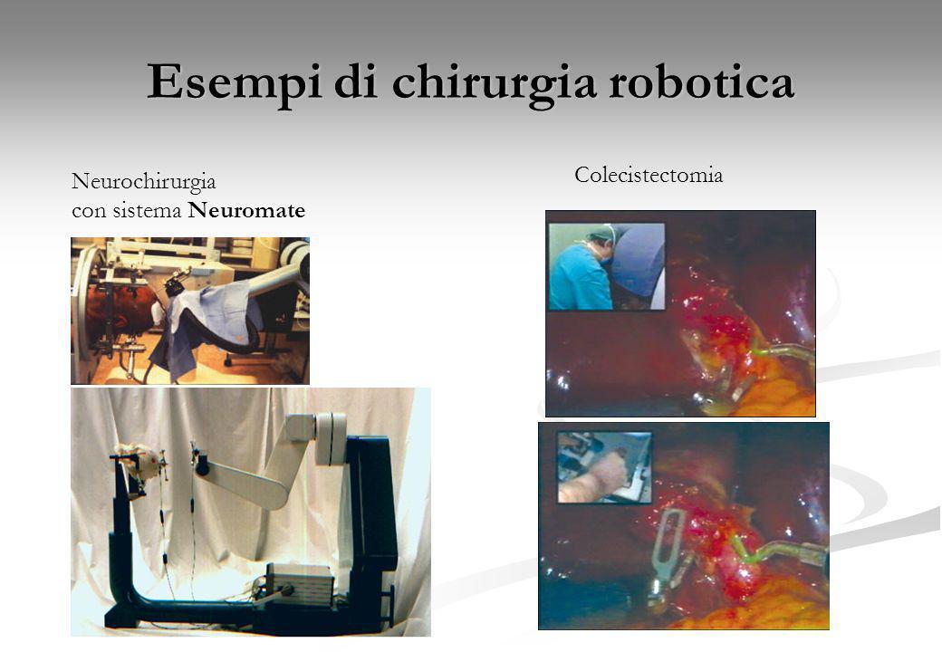 Esempi di chirurgia robotica Nefrectomia totaleBypass coronarico