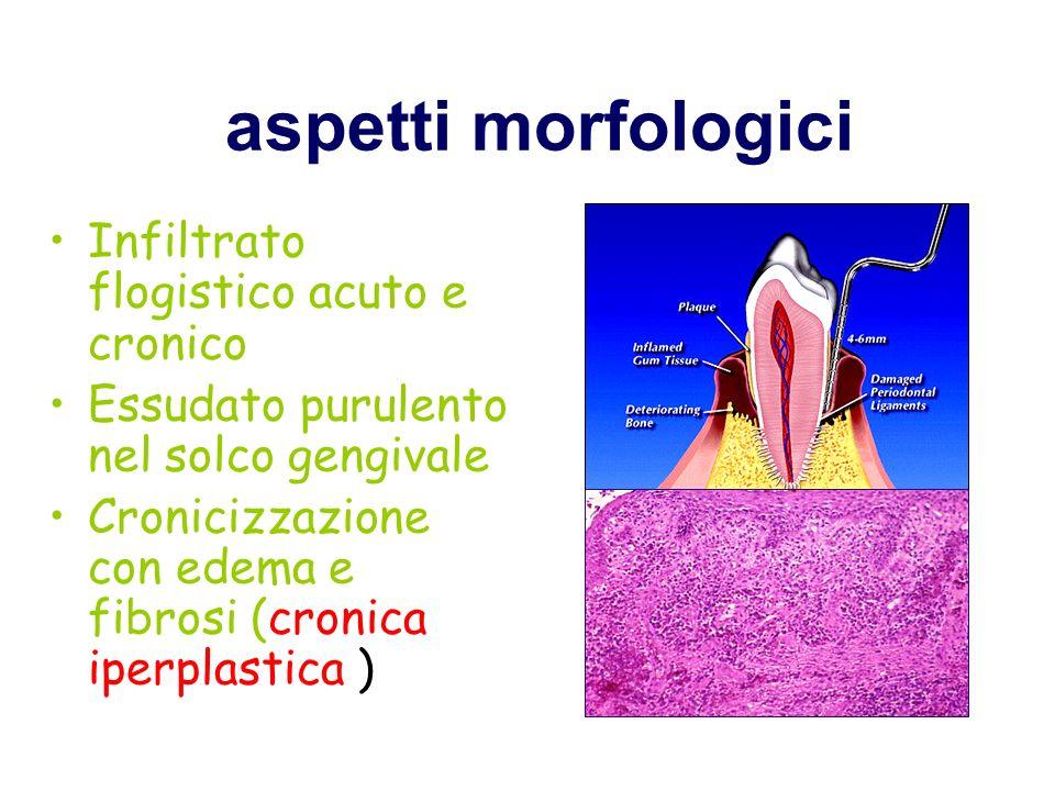 Gengivite ulcerativa necrotizzante (gengivite di Vincent, gengivite acuta ulceromembranosa, da spirocheta)