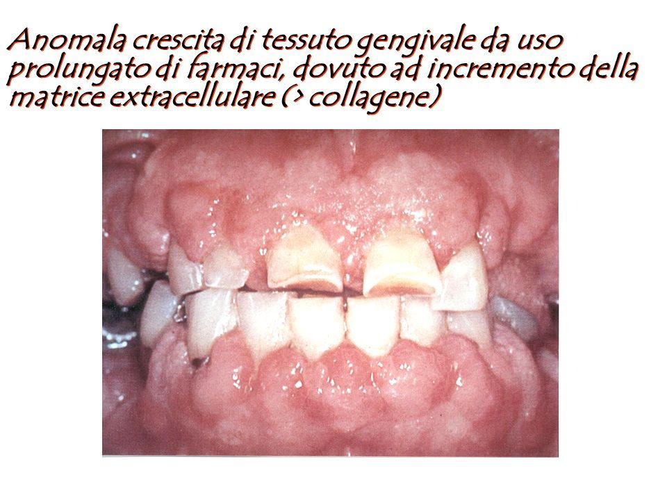 Inizio a livello delle papille interdentali con estensione prevalente a livello buccale Possibile copertura totale della corona del dente interessato In assenza di infiammazione sovrapposta, gengiva di normale colore e dura