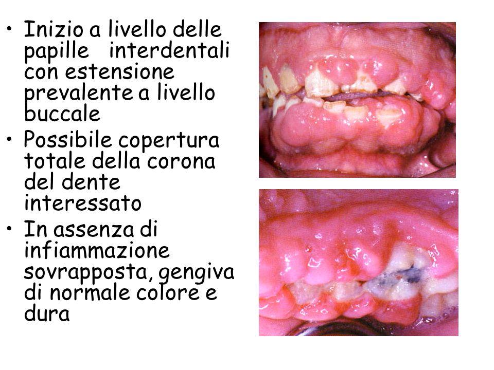 Grado di iperplasia correlato con: suscettibilità del paziente livello di igiene orale dose e durata del trattamento farmacologico suscettibilità del paziente livello di igiene orale dose e durata del trattamento farmacologico