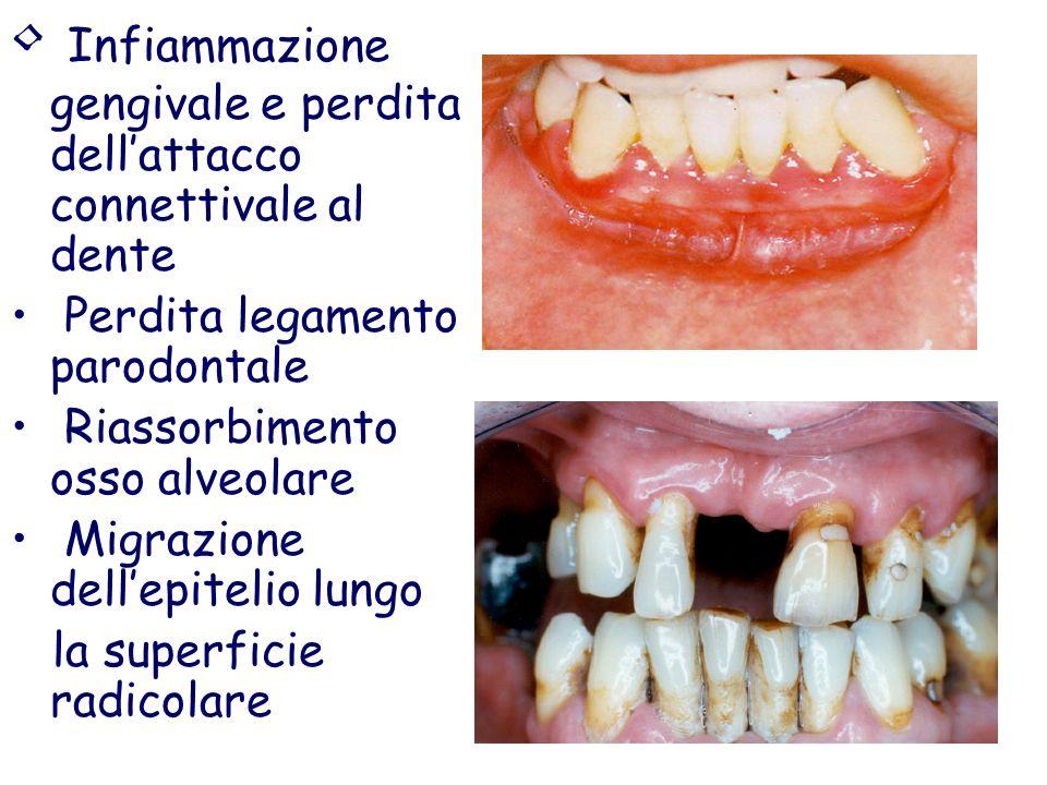 ? Da eziologia batterica specifica - Actinobacillus actinomycetemcomitans - Porphyromonas gengivalis - Prevotella intermedia