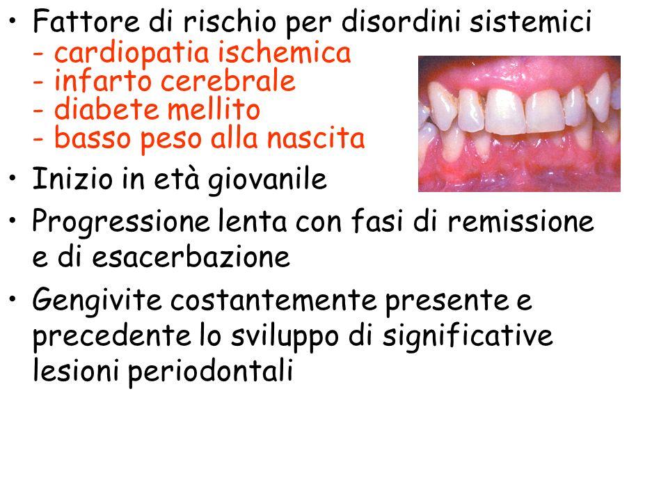 Formazione di tasche peridentali significative per la diagnosi - in assenza di iperplasia gengivale - profonde almeno 0.3 cm ( distruzione del legamento periodontale e riassorbimento del letto alveolare )
