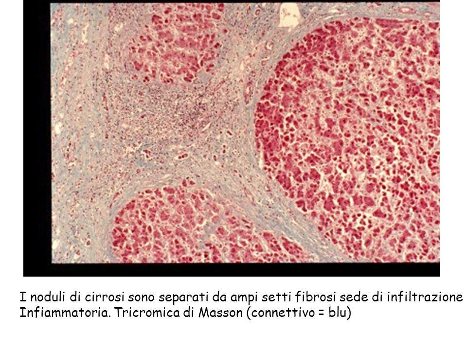 I noduli di cirrosi sono separati da ampi setti fibrosi sede di infiltrazione Infiammatoria. Tricromica di Masson (connettivo = blu)