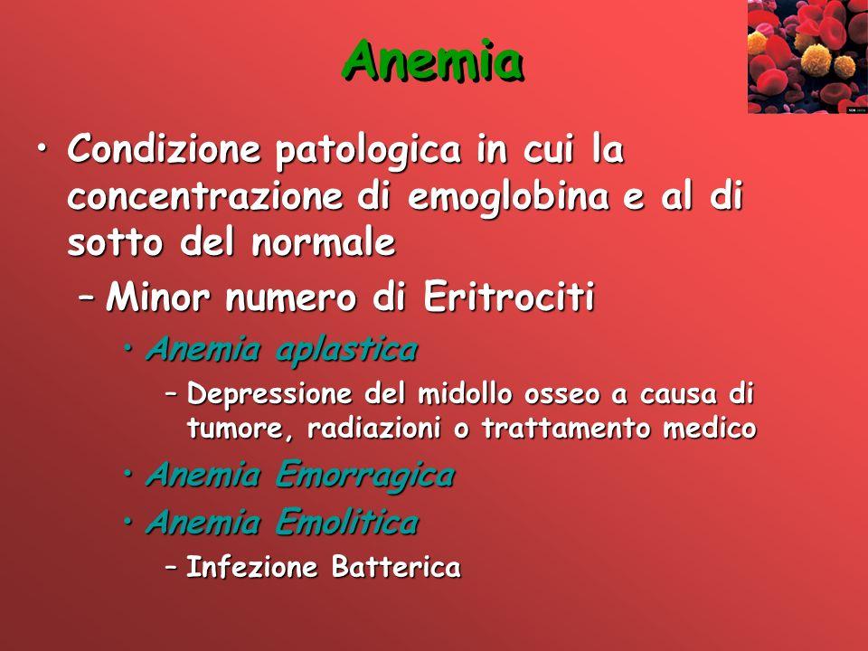 Anemia Condizione patologica in cui la concentrazione di emoglobina e al di sotto del normaleCondizione patologica in cui la concentrazione di emoglob