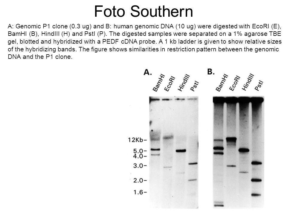 Cosa si analizza con un Northern blot La trascrizione cellulare