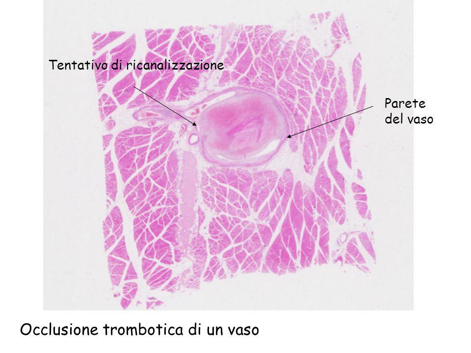Parete del vaso Tentativo di ricanalizzazione Occlusione trombotica di un vaso