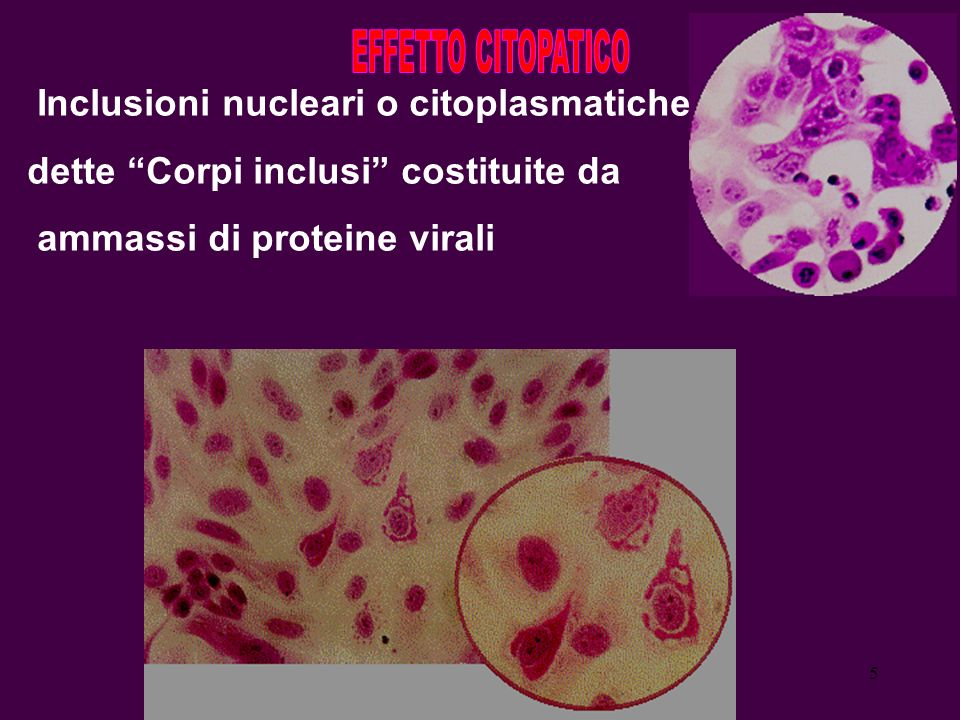 5 Inclusioni nucleari o citoplasmatiche dette Corpi inclusi costituite da ammassi di proteine virali