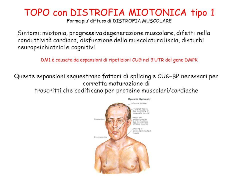 TOPO con DISTROFIA MIOTONICA tipo 1 Forma piu diffusa di DISTROFIA MUSCOLARE DM1 è causata da espansioni di ripetizioni CUG nel 3UTR del gene DMPK Que