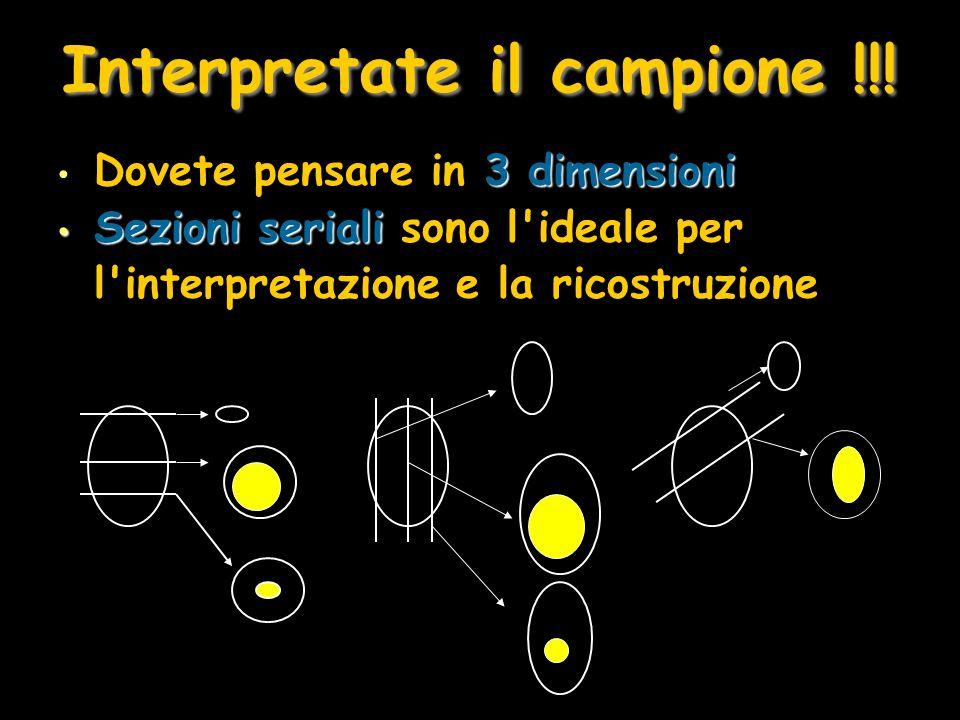 Interpretate il campione !!! 3 dimensioni Dovete pensare in 3 dimensioni Sezioni seriali Sezioni seriali sono l'ideale per l'interpretazione e la rico