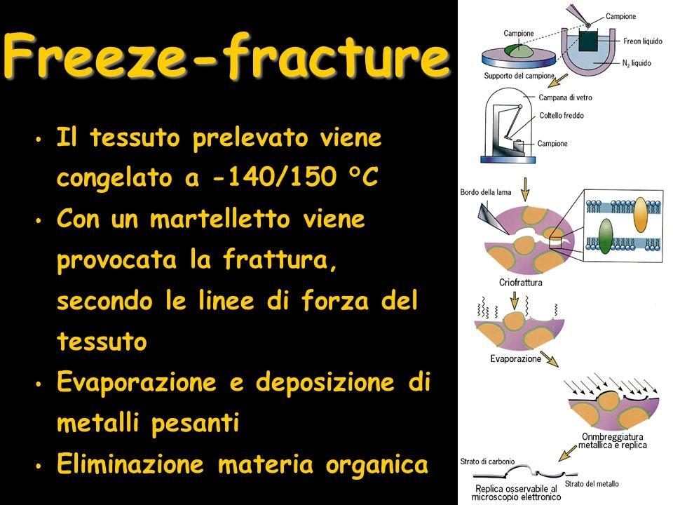 Freeze-fracture Il tessuto prelevato viene congelato a -140/150 °C Con un martelletto viene provocata la frattura, secondo le linee di forza del tessu