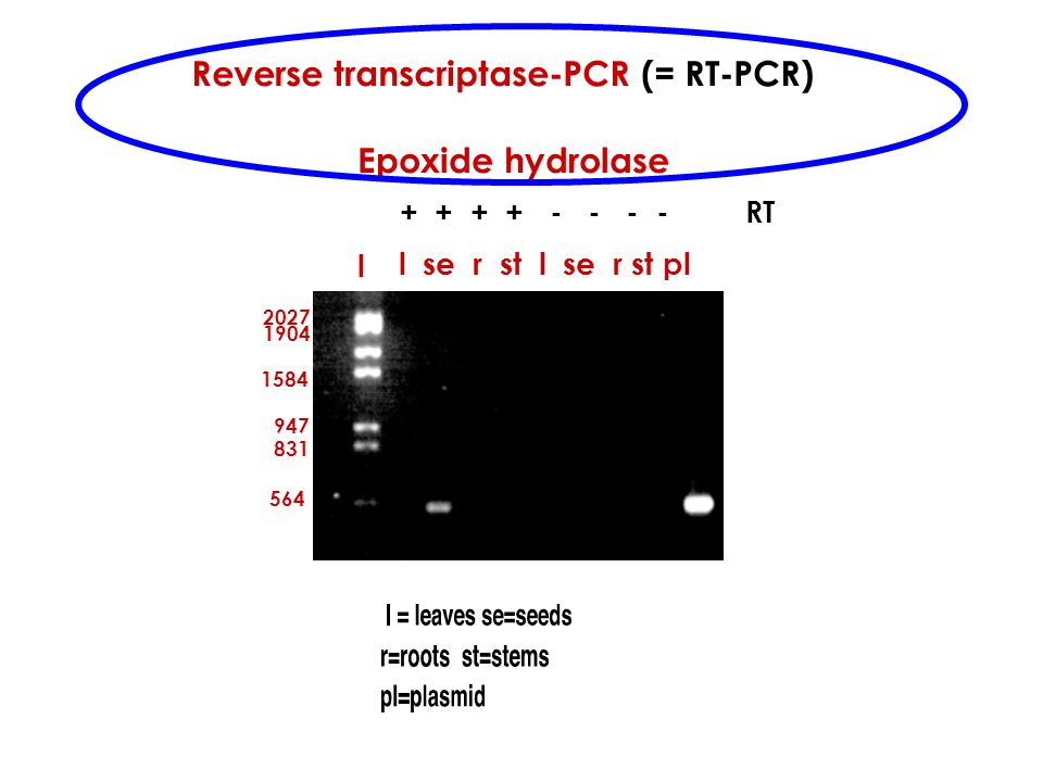l l se r st l se r st pl + + + + - - - - RT Reverse transcriptase-PCR (= RT-PCR) Epoxide hydrolase 831 947 1904 2027 564 1584