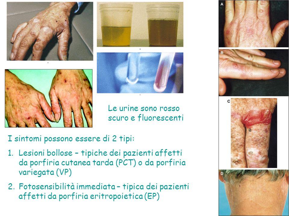 I sintomi possono essere di 2 tipi: 1.Lesioni bollose – tipiche dei pazienti affetti da porfiria cutanea tarda (PCT) o da porfiria variegata (VP) 2.Fotosensibilità immediata – tipica dei pazienti affetti da porfiria eritropoietica (EP) Le urine sono rosso scuro e fluorescenti