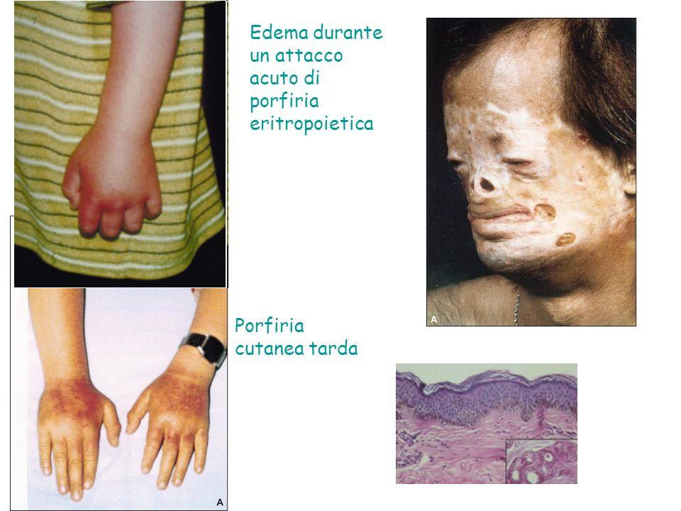 Edema durante un attacco acuto di porfiria eritropoietica Porfiria cutanea tarda
