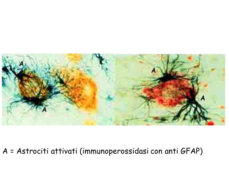 A = Astrociti attivati (immunoperossidasi con anti GFAP) A A A A