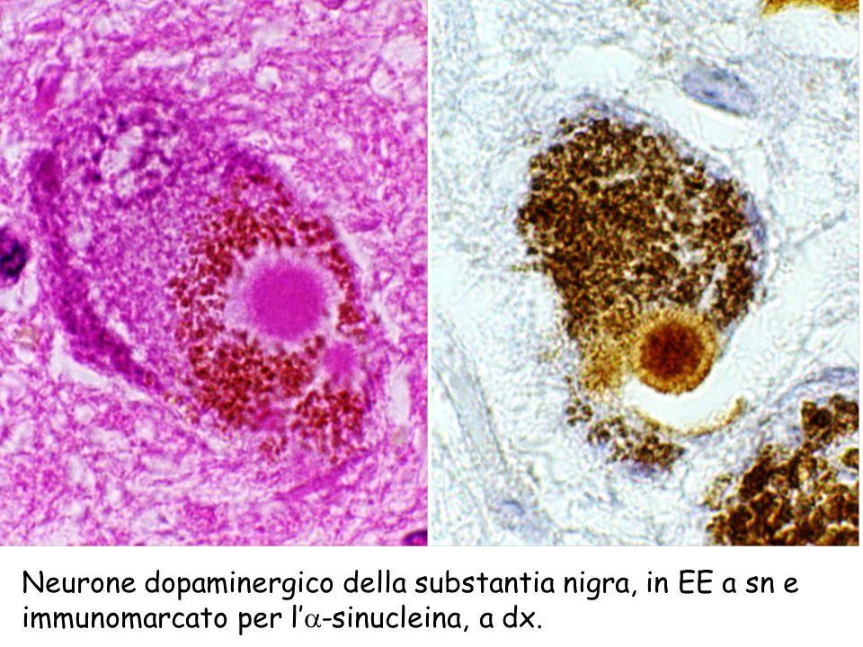 Neurone dopaminergico della substantia nigra, in EE a sn e immunomarcato per l -sinucleina, a dx.