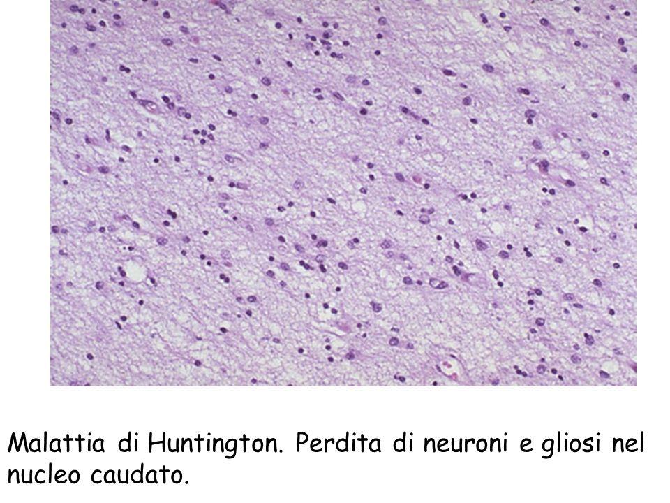 Malattia di Huntington. Perdita di neuroni e gliosi nel nucleo caudato.