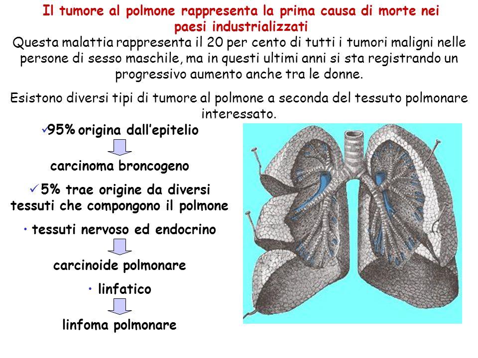 Il tumore al polmone rappresenta la prima causa di morte nei paesi industrializzati Questa malattia rappresenta il 20 per cento di tutti i tumori mali