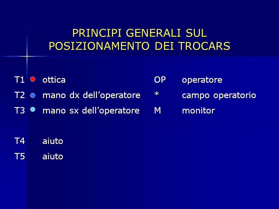 PRINCIPI GENERALI SUL POSIZIONAMENTO DEI TROCARS T1otticaOPoperatore T2mano dx delloperatore*campo operatorio T3mano sx delloperatoreMmonitor T4aiuto