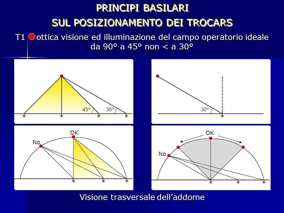 PRINCIPI BASILARI SUL POSIZIONAMENTO DEI TROCARS PRINCIPI BASILARI SUL POSIZIONAMENTO DEI TROCARS T1 ottica visione ed illuminazione del campo operato