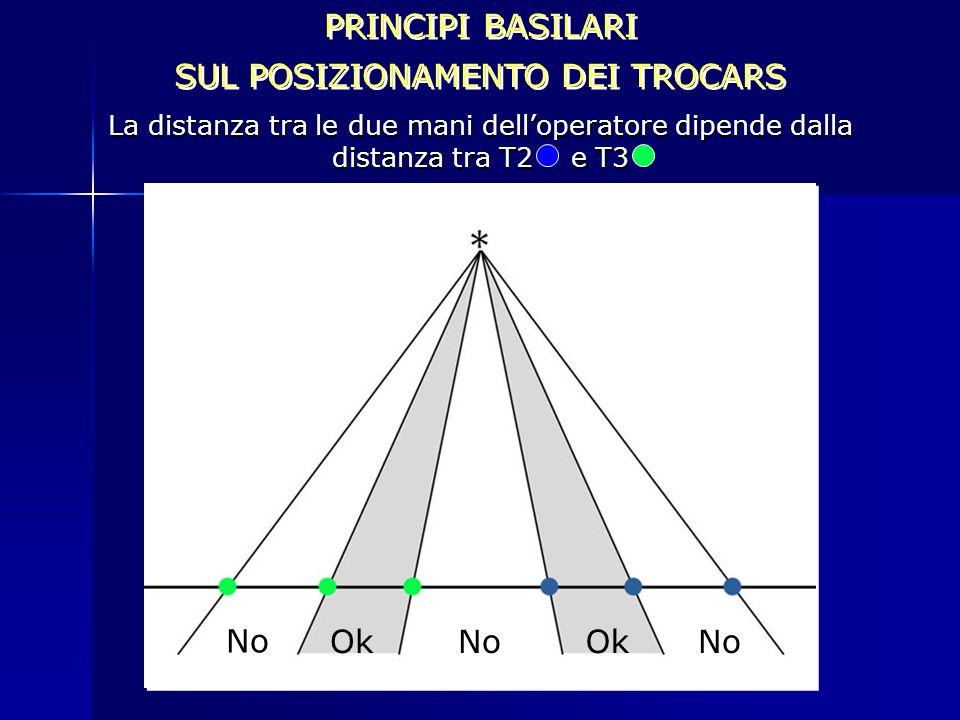 PRINCIPI BASILARI SUL POSIZIONAMENTO DEI TROCARS PRINCIPI BASILARI SUL POSIZIONAMENTO DEI TROCARS La distanza tra le due mani delloperatore dipende da