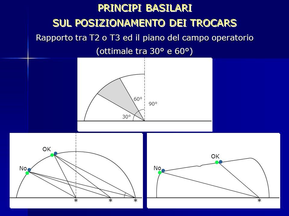 60° 30° 90° PRINCIPI BASILARI SUL POSIZIONAMENTO DEI TROCARS PRINCIPI BASILARI SUL POSIZIONAMENTO DEI TROCARS Rapporto tra T2 o T3 ed il piano del cam