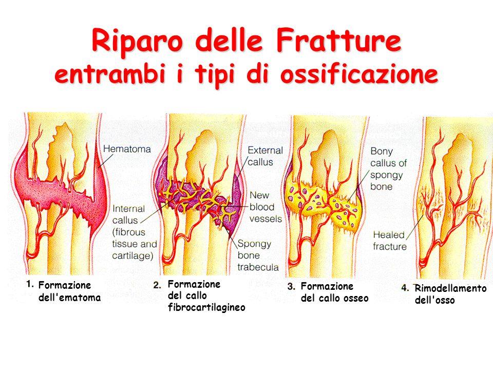 Riparo delle Fratture entrambi i tipi di ossificazione Formazione dell'ematoma Formazione del callo osseo Rimodellamento dell'osso Formazione del call