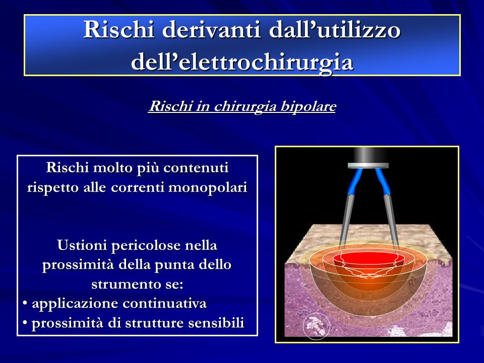 Rischi derivanti dallutilizzo dellelettrochirurgia Rischi in chirurgia bipolare Rischi molto più contenuti rispetto alle correnti monopolari Ustioni p