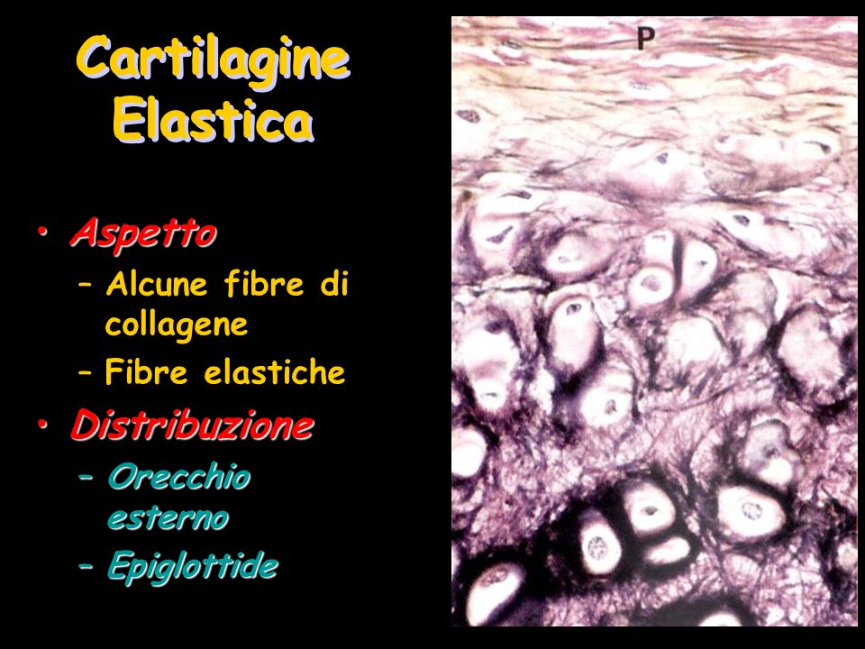 Cartilagine Elastica AspettoAspetto –Alcune fibre di collagene –Fibre elastiche DistribuzioneDistribuzione –Orecchio esterno –Epiglottide
