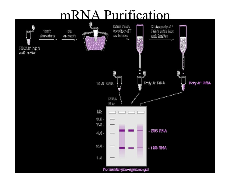 Fig 4.20 separation of poly-A mRNA