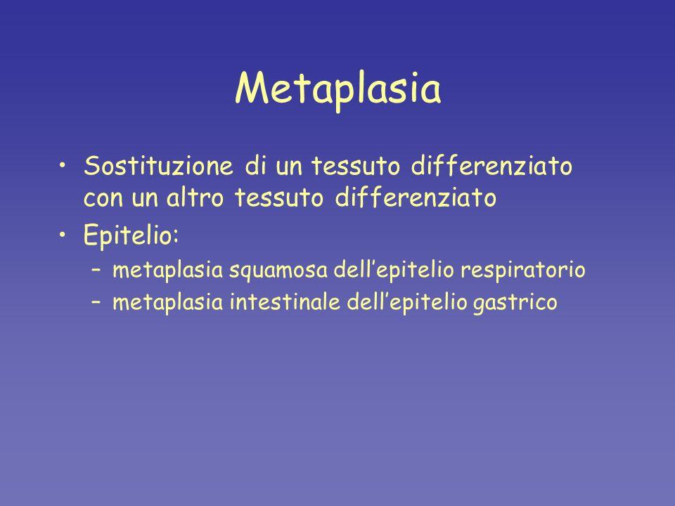 Metaplasia Sostituzione di un tessuto differenziato con un altro tessuto differenziato Epitelio: –metaplasia squamosa dellepitelio respiratorio –metap