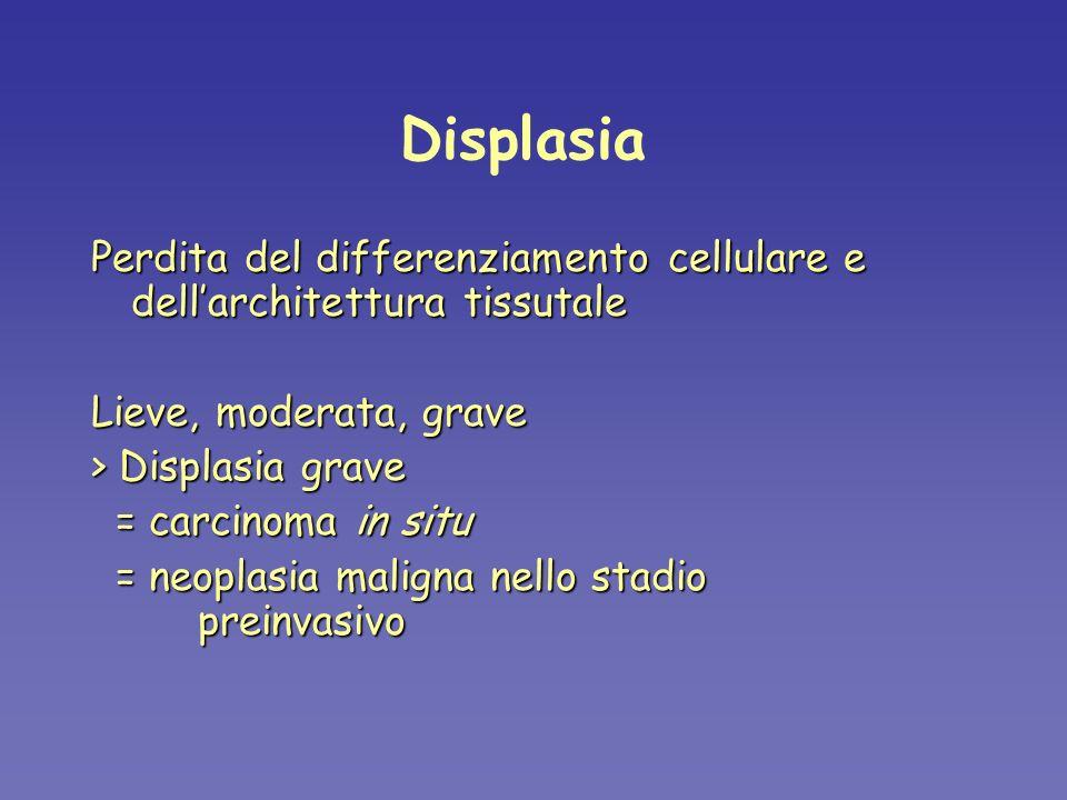 Displasia Perdita del differenziamento cellulare e dellarchitettura tissutale Lieve, moderata, grave > Displasia grave = carcinoma in situ = carcinoma