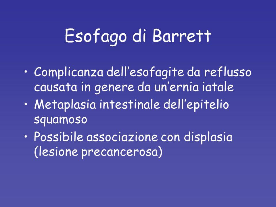 Esofago di Barrett Complicanza dellesofagite da reflusso causata in genere da unernia iatale Metaplasia intestinale dellepitelio squamoso Possibile as