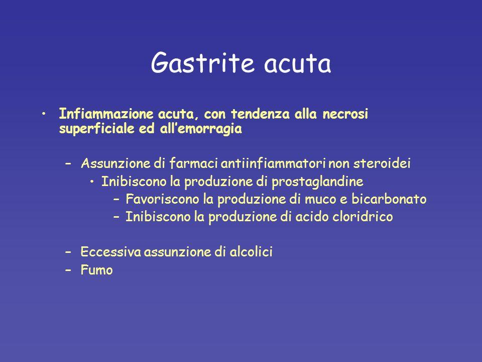 Gastrite acuta Infiammazione acuta, con tendenza alla necrosi superficiale ed allemorragia –Assunzione di farmaci antiinfiammatori non steroidei Inibi