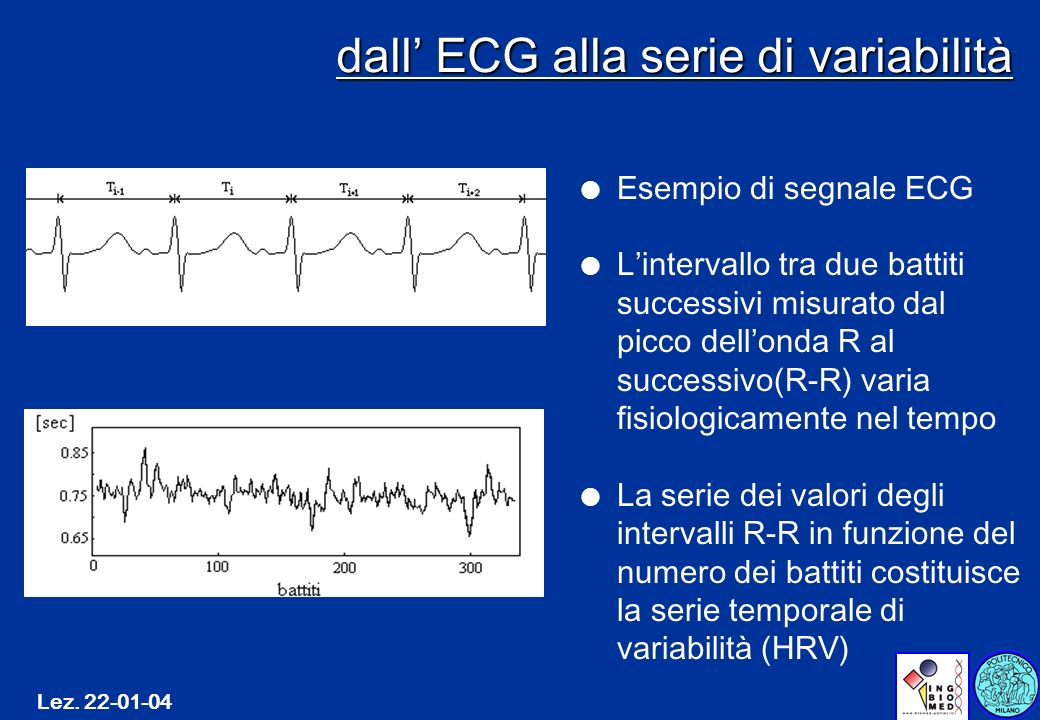 Lez. 22-01-04 dall ECG alla serie di variabilità l Esempio di segnale ECG l Lintervallo tra due battiti successivi misurato dal picco dellonda R al su