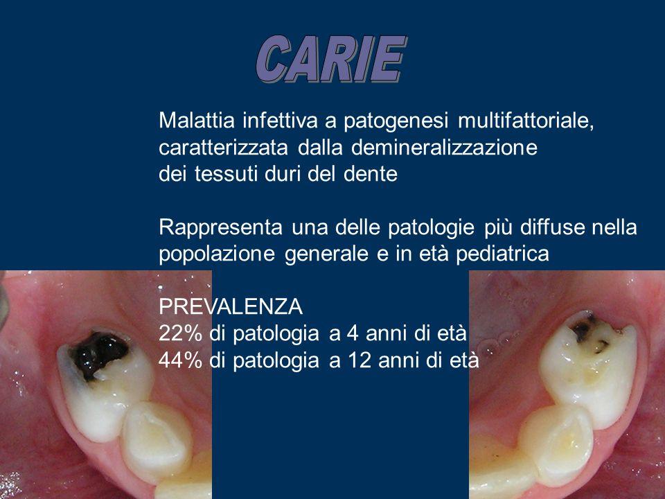 Malattia infettiva a patogenesi multifattoriale, caratterizzata dalla demineralizzazione dei tessuti duri del dente Rappresenta una delle patologie pi