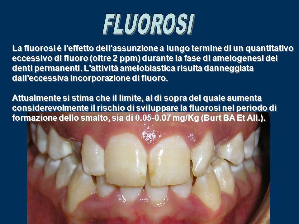 La fluorosi è l'effetto dell'assunzione a lungo termine di un quantitativo eccessivo di fluoro (oltre 2 ppm) durante la fase di amelogenesi dei denti