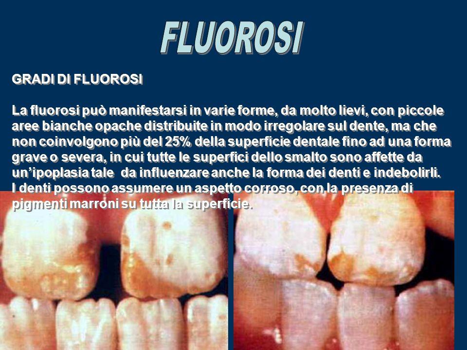 GRADI DI FLUOROSI La fluorosi può manifestarsi in varie forme, da molto lievi, con piccole aree bianche opache distribuite in modo irregolare sul dent